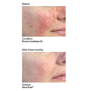 Before and after showing reduced skin redness and brighter younger looking skin