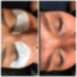 Skincare, Chemical Peels, Eyelash Extension, Tacoma, Puyallup, Seattle, Olympia, Lacey, Gigharbor, care credit, 6th Avenue businesses, micro-dermabrassion, micro-needling, waxing, micro-blading, salon, spa, pca skin, discoloration, hyperpigmentation, wrinkles,acne, treatment, aging, antiaging, anti-aging, rosacea, dermatology, esthetics, esthetician, licensed, Tacoma eyelash extensions,microblading,skincare,hair,novalash, waxing, permanent cosmetics, eyeliner, microblading, training, education, skin, skincare, wrinkles, age, young, youthful, acne, chemical peels, chemical peel, microblading, microneedling, microdermabrasion, look younger, best, tacoma eyelash extension training, carecredit, care credit, skin treatments, facial, facials, amazing, new, advanced, radiant, glowing, special, good, favorite, PCA, professional, corrective, dermatology, dermatologist, success, successful, anti-aging, antiaging, discoloration, highper pigmentation, sensitive, rosacia, rosacea, redness, retinol,