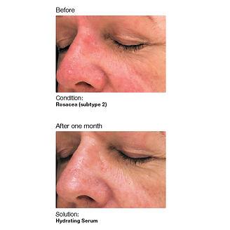 Tacoma skin care service for rosacea using sensi peel
