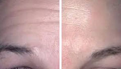 Skin care plasma fibroblasting before and after photos