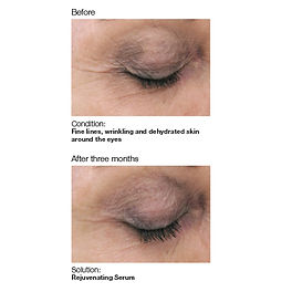 Skincare in Tacoma showing before and after photos using rejuvenating serum, retinol around the eyes resulting in less fine lines and treats crowsfeet line, smoking line, laugh lines