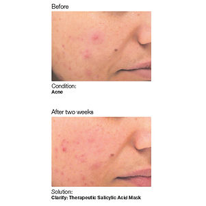 Before and after photo showig skin acne and then clearer and brighter skin