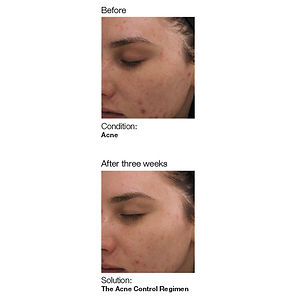 Tacoma service before and after three week photo on controling skin acne