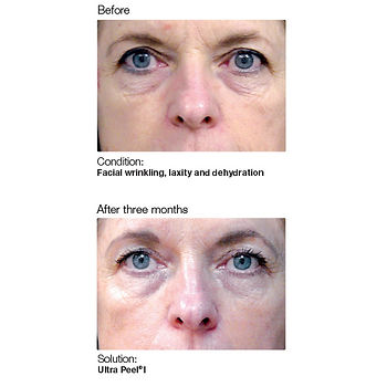 Skincare Tacoma services showing before and after younger looking skin with reduced skin wrinkles and tighter skin