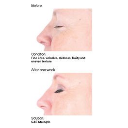 Tacoma skin care before and after photo showing less wrinkles, skin dullnes and younger looking skin