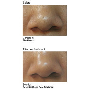 Tacoma skin care services showing skin blackheads using detox gel deep pore treatment for contrling acne