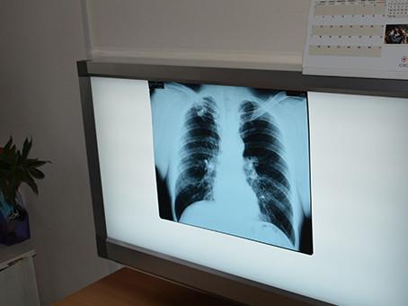 24 марта Всемирный день борьбы с   туберкулезом.