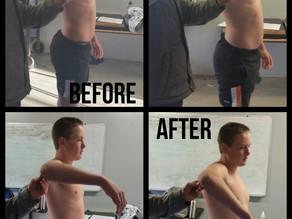 Shoulder Injuries - Tom Chanter