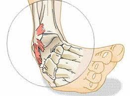THP Injuries