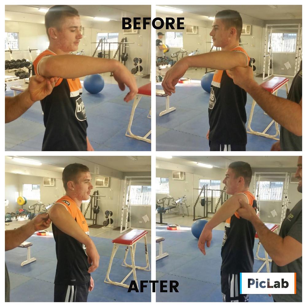 THP Total Health Performance Rugby League Shoulder rehab Camden Ingleburn Campbelltown Narellan