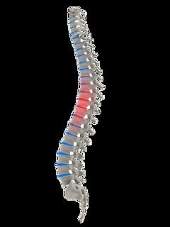 Back Pain & Disc Problems Treated Temecula