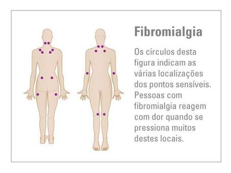 Acupuntura contra fibromialgia