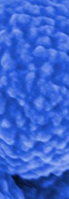 TSmart-VesicleGEL03.jpg