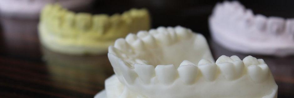 3D打印牙科模型_ Raise3D打印機.jpg