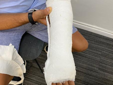 שברתם את היד? כדאי שתדעו איזה גבסים יש היום בישראל