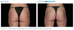 Emsculpt Before & After Results