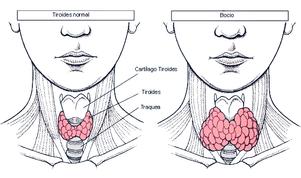 Tiroiditis de Hashimoto Entre dolamas y sobrepeso
