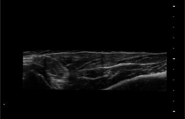 血管内中膜自动测量