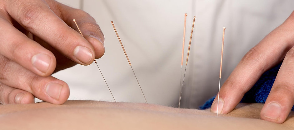 Meng TCM Wellness Centre specialises in Acupuncture