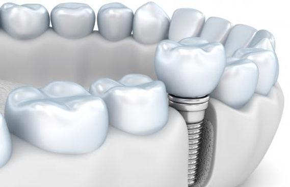 tratamientos-de-implantología-dental-clí