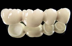 prix-couronne-dentaire1.jpg