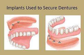 dental_implants_denture1_edited.jpg