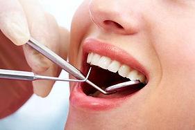 Dental-Cleaning.jpg