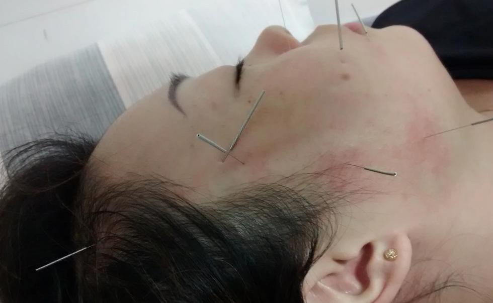 Acuterapia - Estude na China - Temporada 2014