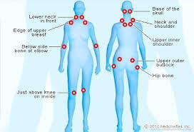 An info graphic of the femal body in blue color. The body outlines show read dots at various parts of the body. This is to illustrate the different parts of the body where fibromyalgia pain shows up.