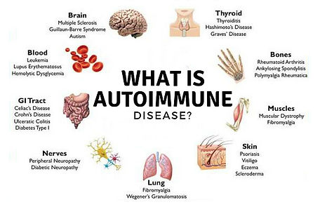A graphic that illustrates, what is autoimmune disease? It has a picture of a brain, blood cells, Gi tract, nerves, lung, skin muscles, bones and thyoid.