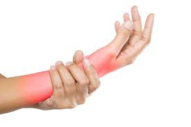 Color image of a femal wrist. She is holder her right wrist that has been colored red to illustrate pain for carpal tunnel syndrome.
