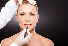 Wrinkle Injections, Botox Injections London