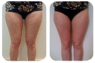 2 Legs.png