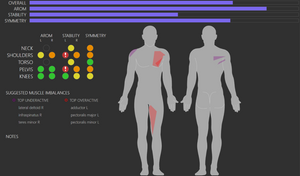 Clinical physical therapy motion analysis as patient education tool
