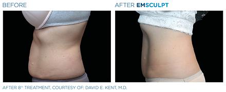 Emsculpt_PIC_Ba-card-female-abdomen-002_