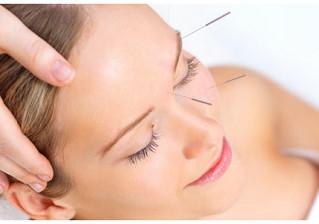 朔-SAKU-鍼灸整骨院の美容鍼とは