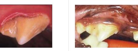 Zahnsteinentfernung ohne Narkose