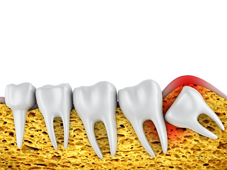 Wisdom Tooth Extraction in Gurgaon