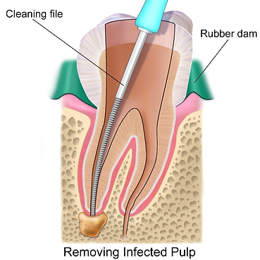 root canal treatment.png