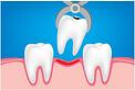 dentist in gurgaon
