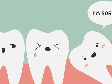 Wisdom teeth  What is wisdom teeth?