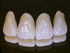 Ceramic Teeth.jpg