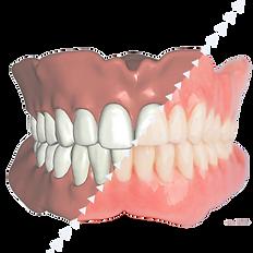 3d Dentures_edited.png