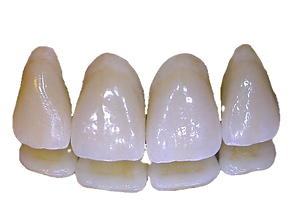 Ceramic Teeth_edited_edited.png