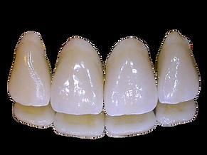 Ceramic Teeth_edited_edited.png