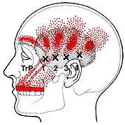 temporalisTP.jpg
