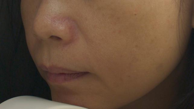 1.皮膚較薄、色澤暗淡、缺乏光澤度。 2.肌膚呈乾性、有鱗屑、脫皮。 3.嚴重時底層見敏感發炎。