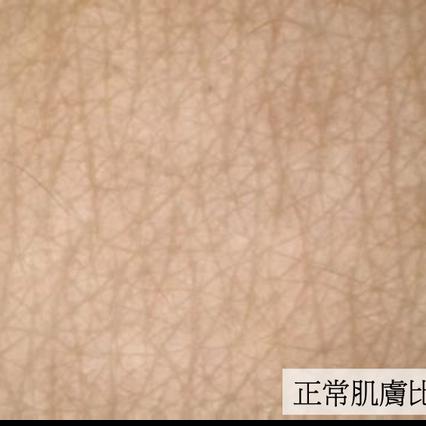 1.皮溝皮丘紋路清晰
