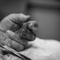 post suture repair