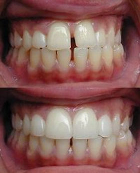 Dr. Casperino, Dr. Salvador, dentist, dentist 07762, dentist 07512, dentist spring lake nj, dentist Totowa nj, dentist Monmouth county, dentist Passaic county, invisalign, braces, implants, teeth cleaning, hygiene, xrays, periodontics, restorative, filling, crown, cap, veneer, bridge, teeth whitening, toothache, root canal, tooth pain, extraction, wisdom teeth, bleaching trays, TMJ, Sealants, Oral cancer, dentures/partials, sports guards, bonding, snap-on-smile, totowa dentist, spring lake hts dentist, new patient dentist, orthodontics, teeth straightening, female dentist, male dentist, union blvd, route 71